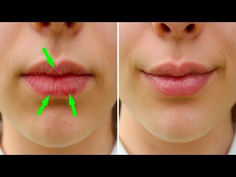 #HealthyLivingTips Here's How To Heal Your Dry, Chapped Lips Naturally - 7... #NaturalCure #Health