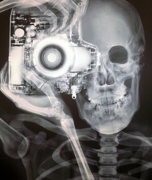 X-Ray Image of Photographer and Camera by Nick Veasey