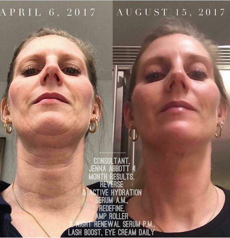 You can have these results too! Message me today to improve your skin. Check out my website at: sherrypetersen.myrandf.com @shrptsn
