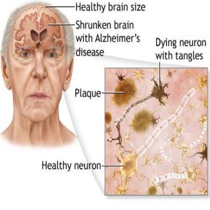 arthritis and alzheimers relationship