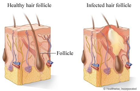 Folliculitis Illustration