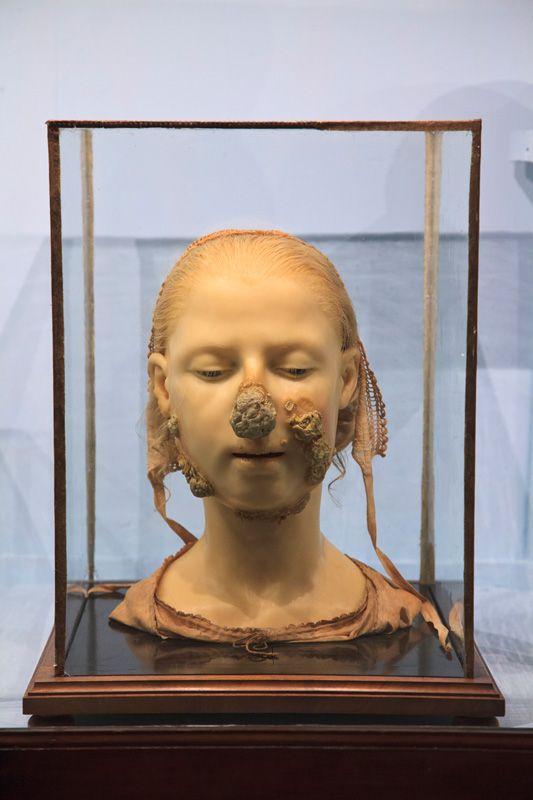 Museo di Anatomia Patologica dell'Universitá degli Studi di Firenze, via Morbid Anatomy