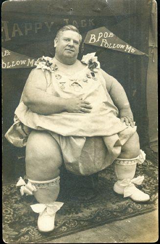 Pictures of midget genitalia