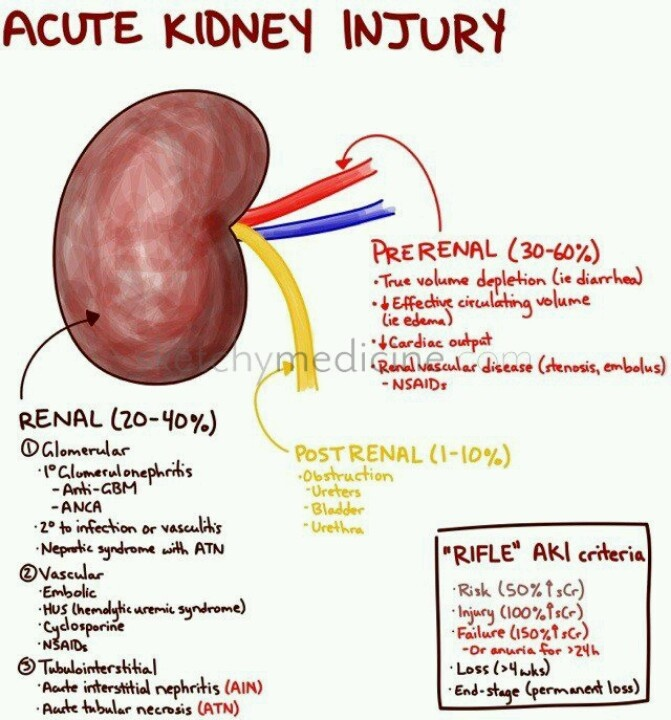 Acute Kidney Injury Stages And RIFLE