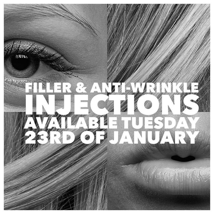 Anti-wrinkle injections and fillers available at @maidenempire Tuesday 23rd of January please call Brooke on 95008888 to book in or with any inquiries  #antiwrinkle #lipfiller #lipfillers #filler #fillers #frownlines #crowsfeet #forehead #lips #eyes #maidenempire #yarravalley #salon #melbournesalon #yarravalleysalon #nurse #cosmeticnurse #drlanzer #cddaniellanzer @brookehanderekfacialaesthetics