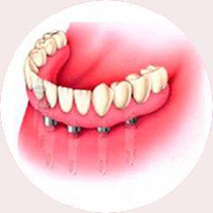Implante | Instituto Carreres: Clínica dental económica en Alicante y Elche. Tratamientos al mejor precio.