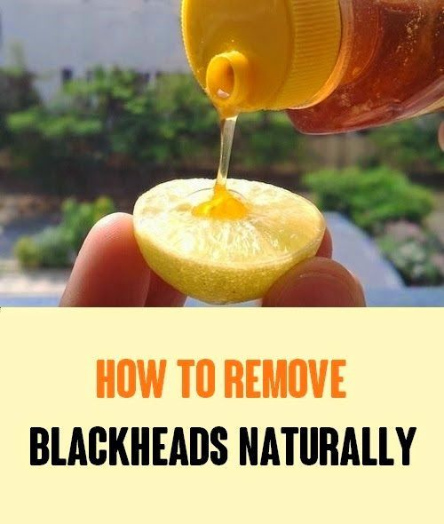 8 Natural Remedies To Remove Blackheads