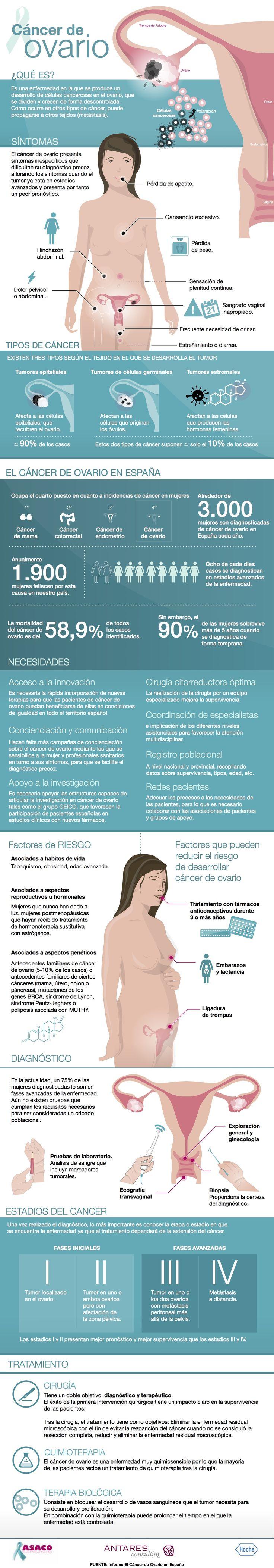 Cáncer de ovario #infografia