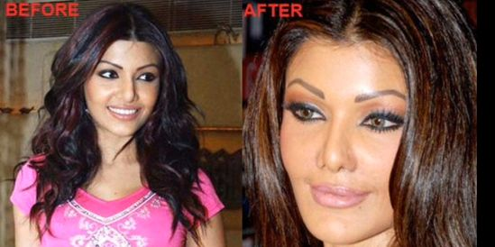 Bollywood Actresses with Plastic Surgery Gone Wrong – Before …