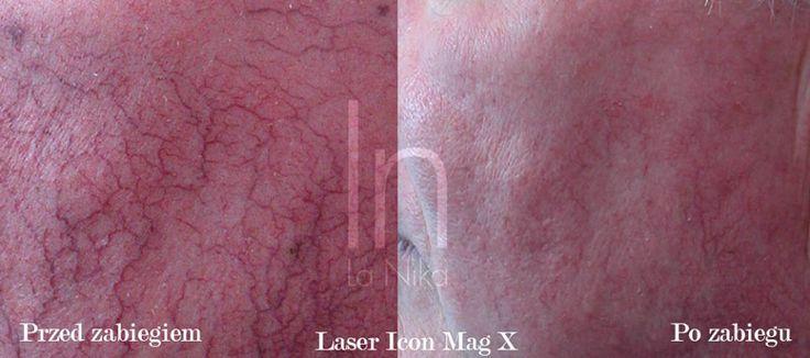 Zamykanie naczynek Laserem Icon w klinice La Nika w Gdańsku - przed i po #lasericon #beforeandafter http://www.la-nika.pl/zabiegi/laser-icon.php