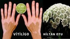 Benekli Hiltan Otu ile Vitiligo Tedavisi