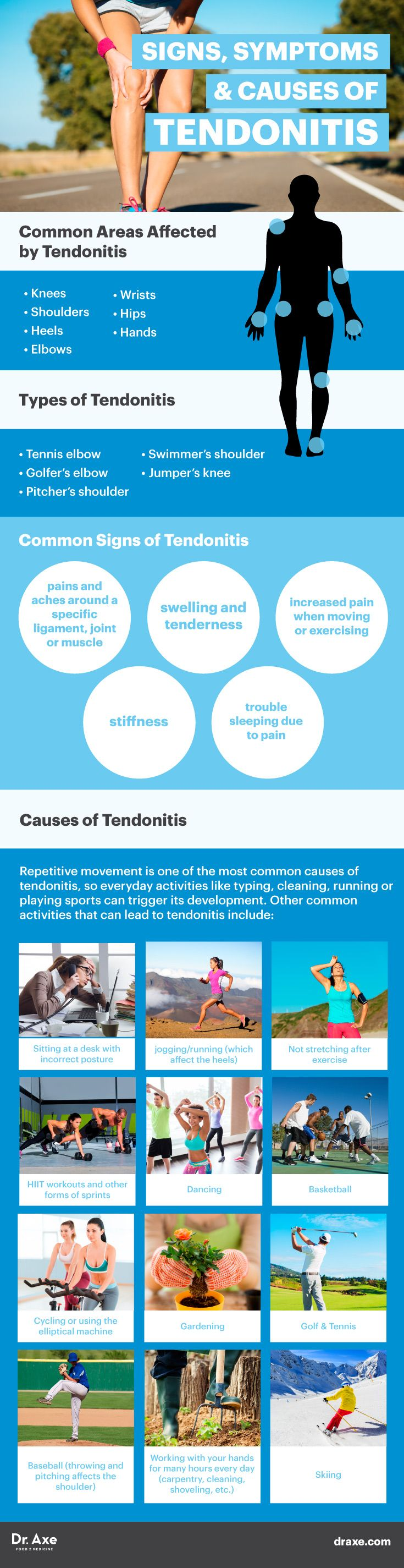 If you or someone you know suffers from Tendonitis - you know it can really be a painful thing. And although there are different ways to treat - these 6 Natural Treatments from Dr. Axe are great to keep in mind.