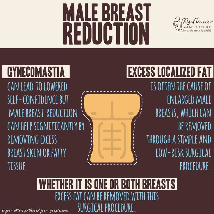 #Breast #breastreduction #Gynecomastia #Infographi…
