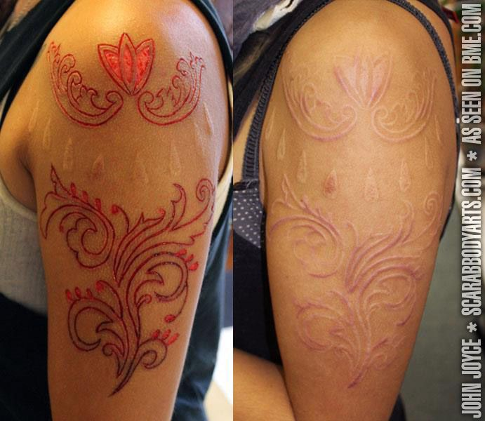 25 best ideas about scarification tattoo on pinterest for Tattoo removal des moines