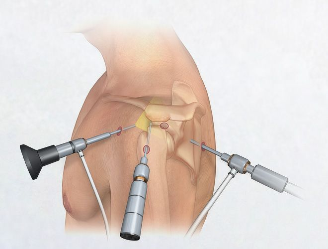 Arthroscopic Shoulder Surgery                                                                                                                                                                                 More