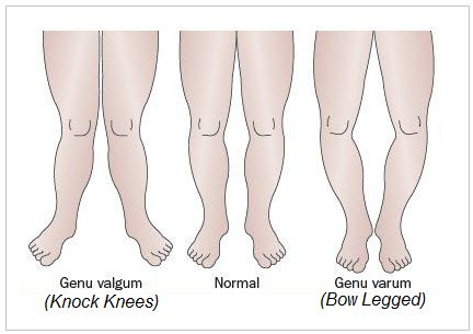 how to get rid of knock knees