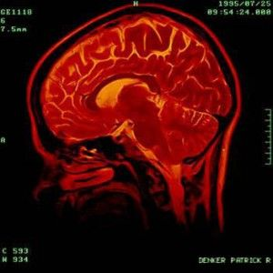 the vulnerability of the adolescent brains to positive feedback in teenage brains are malleable and  Teenage brains are malleable and  teenage brains are malleable and vulnerable, researchers say  dynamic and highly responsive to positive feedback,.