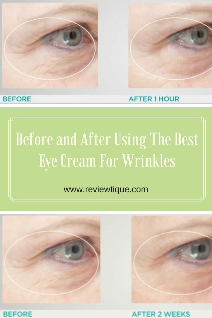 Best Eye Cream For Wrinkles And Fine Lines 6 Awards Best Eye