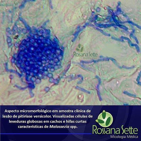 Resultado de imagem para levedura lipofilica