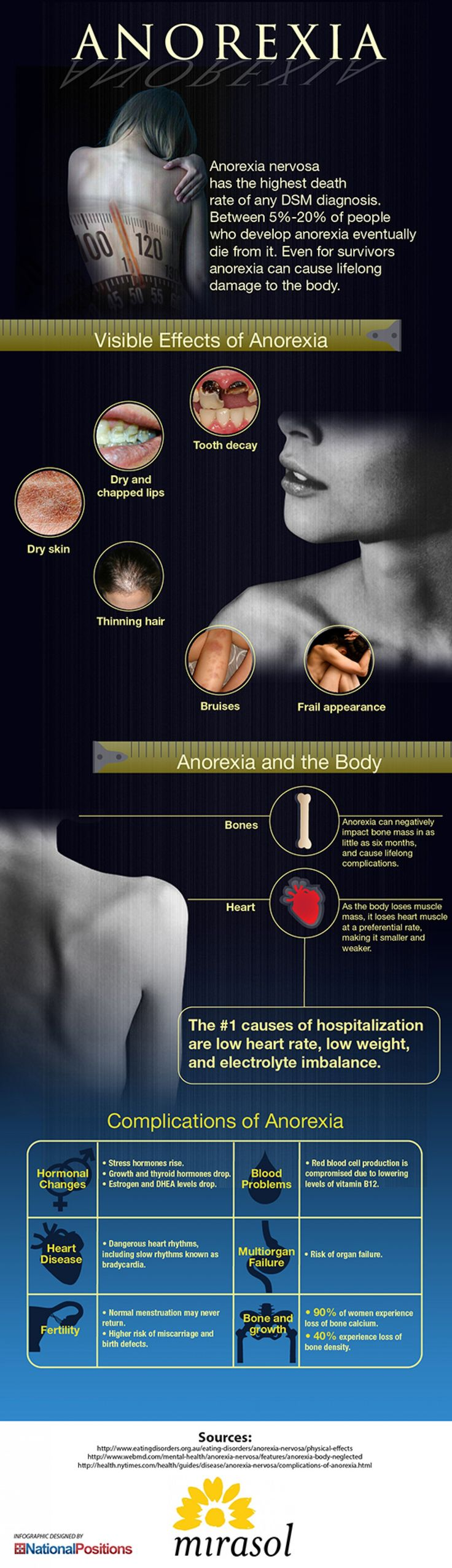 Anorexias' Effects to The Body Infographic