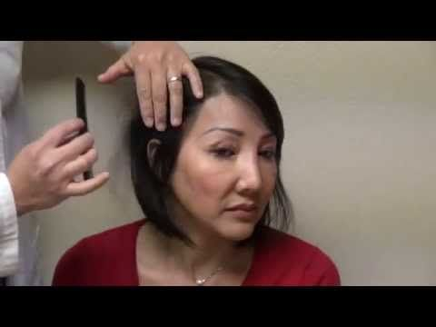 Woman Hair Loss Bald Surgery Treatment Hairline Transplant Restoration Result www.mhtaclinic.com - http://hairregrowthnews.com/woman-hair-loss-bald-surgery-treatment-hairline-transplant-restoration-result-www-mhtaclinic-com/