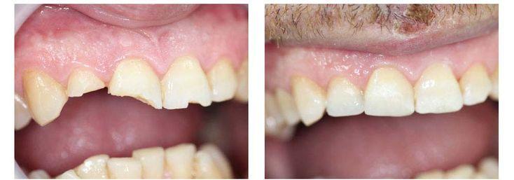 Broken tooth repair broken tooth repair tooth repair