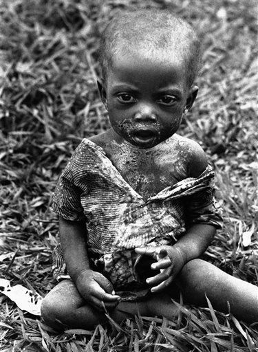 Un niño congolés sufriendo hambruna (1961). (Horst Faas/AP)