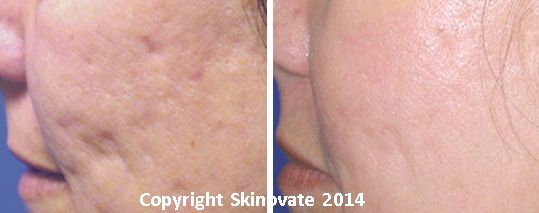 Fantastic results from Fraxel