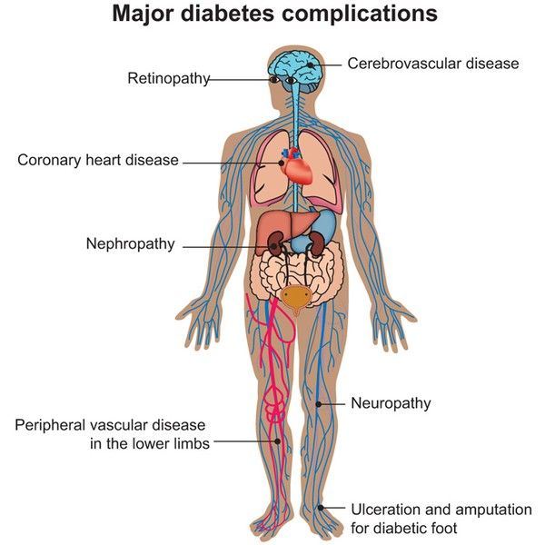 I rischi del diabete...
