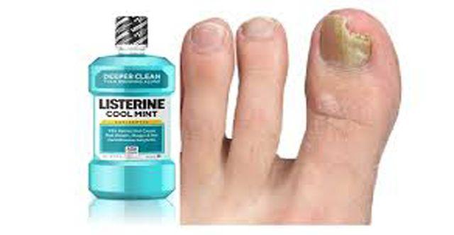 Otros usos del listerine que debes conocer. Sorprendente.! - TuSalud.Info