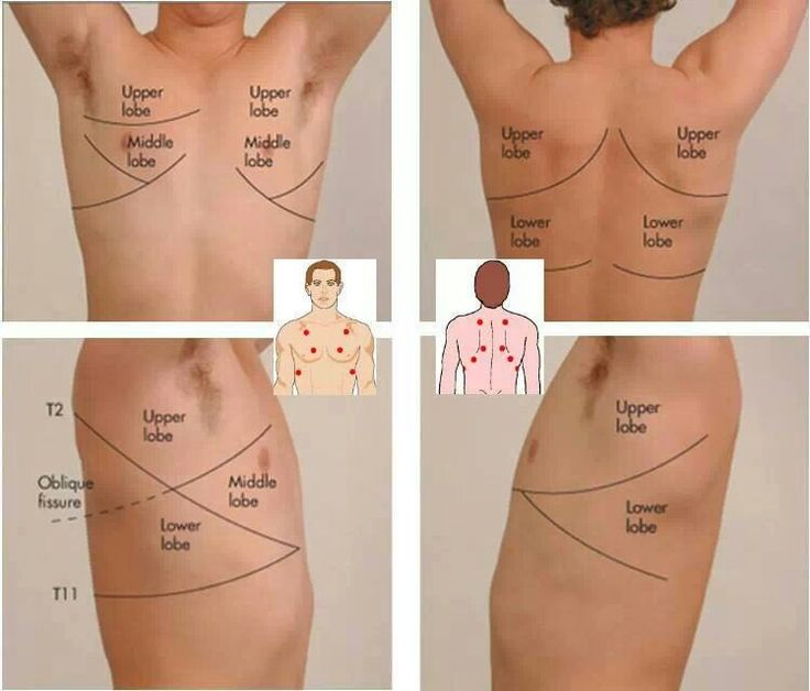 1f203971e9b0ae12592378871c031c44 fields lungs auscultation points emt paramedic airway pinterest lung sounds