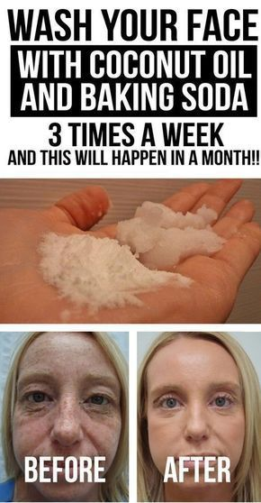 WASH YOUR FACE WITH COCONUT OIL AND BAKING SODA 3 TIMES A WEEK  AND THIS WILL HAPPEN IN A MONTH Examining the back of afacial cleanser is a bit nerve-wracking. What do all those terms mean? Even if you ask someone with knowledge on the subject you wont get a proper answer since many of the