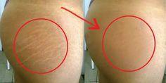 Olvidate de cicatricure crema para eliminar estrias, haz este remedio y en 1 mes ya no tendrás! - YouTube