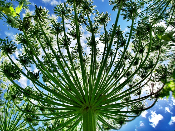 Beware Of The Giant Hogweed Plant This Summer It S Sap Causes Phytotoxic Burns Induced By