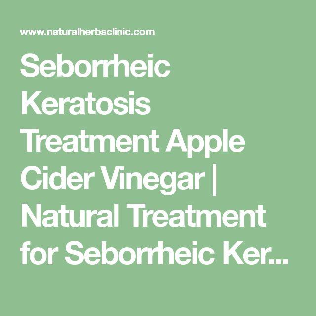 Seborrheic Keratosis Treatment Apple Cider Vinegar   Natural Treatment for Seborrheic Keratosis - Natural Herbs Clinic