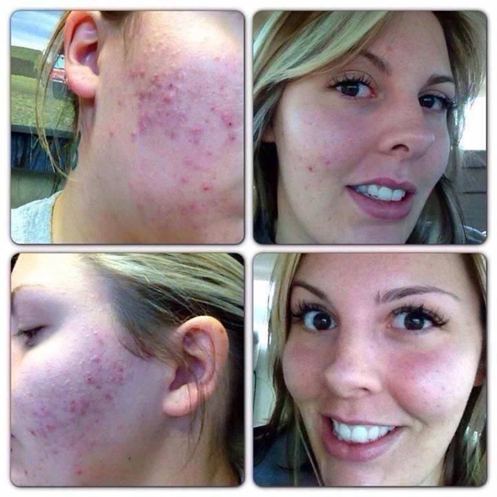 Don't love your skin.  Try Nerium.  Nerium users love their skin again...and LOVE NERIUM.