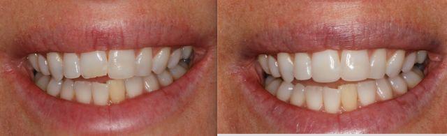 Dental Composite Comparison: Sonicfill 2 vs. Estelite Omega