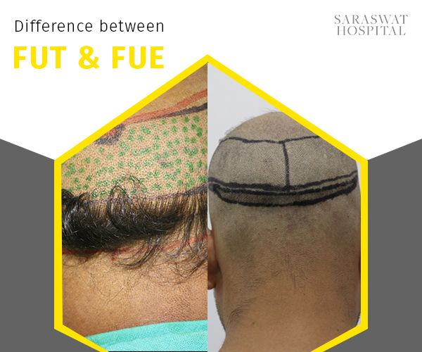 FUT & FUE are two different hair transplant procedures. The main difference between the two lie in the fact that in FUT, a strip of donor skin is removed from which individual follicular units are extracted and then transferred to the areas of hair loss. Whereas in FUE, individual follicular units are surgically removed directly from the scalp.