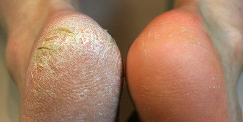 How To Remove Calluses On Feet