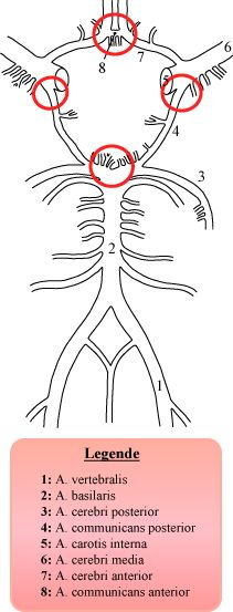 Circulus arteriosus SAB Lokalisationen - Circle of Willis - Wikipedia, the free encyclopedia