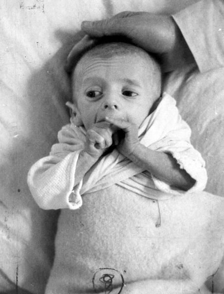 A French baby suffering from starvation at the close of the war. Original Publication: Picture Post - France Famine - Does It Matter To Us? - pub. 1945 (Photo by Picture Post/Getty Images) We must remember.