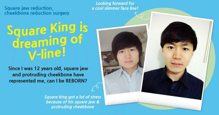 Real journey square jaw reduction & cheekbone reduction surgery at Wonjin Plastic Surgery