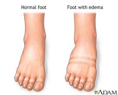The abnormal buildup of fluid in the body is called edema. Edema is commonly seen in the feet and ankles, because of the effect of gravity, swelling is particularly noticeable in these locations. Common causes of edema are prolonged standing, prolonged sitting, pregnancy, being overweight, and increase in age.