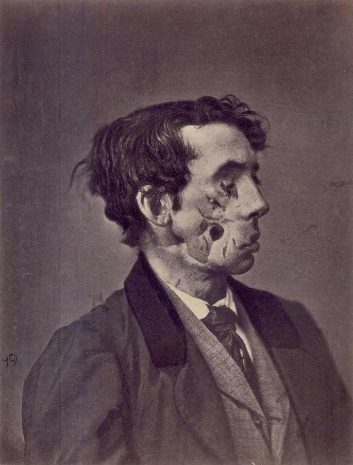 Civil War facial trauma - 1865. Photograph of a private injured in the American Civil War by a shell two years previously.