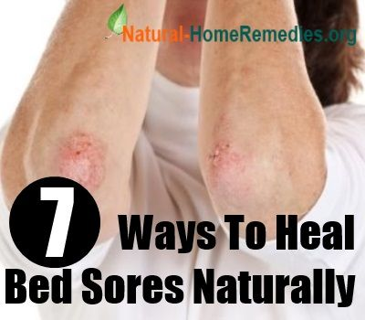 How To Treat Bed Sores Naturally