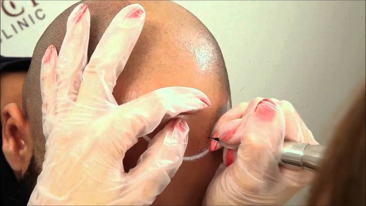 The Art of Micro Scalp Pigmentation - Vinci Hair Clinic Paris
