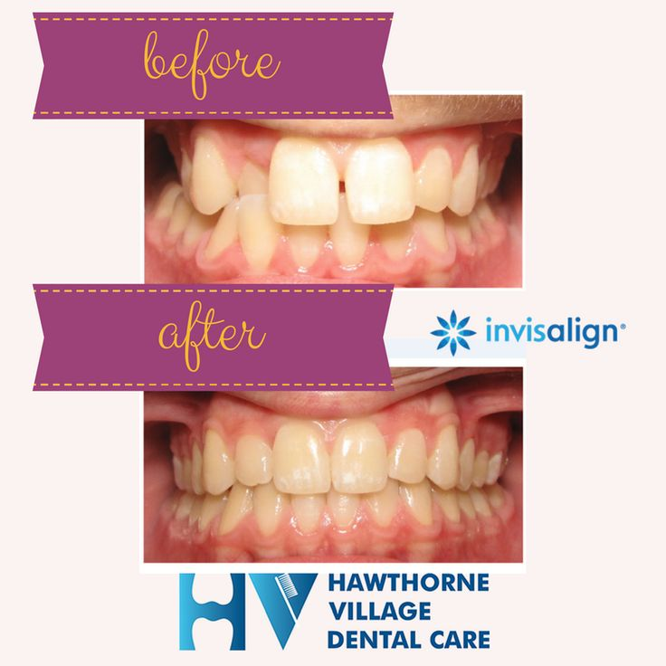 """Is Invisalign as effective as """"regular"""" braces? Pictures"""