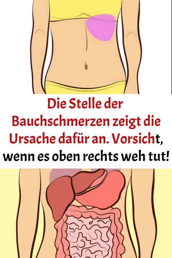Die Stelle der Bauchschmerzen zeigt die Ursache dafür an