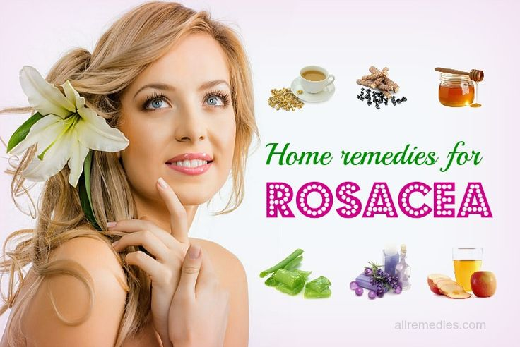 Natural home remedies for rosacea treatment on face will show you 21best ways to treat rosacea effectively at home.