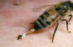 Best Way To Treat Bee Stings http://healthandwellnessguru.com/best-way-to-treat-bee-stings/
